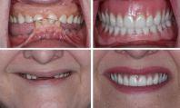 immediate-dentures-1