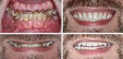 immediate-dentures-2