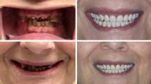 immediate-dentures-3