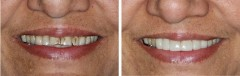 porcelain-veneers-3